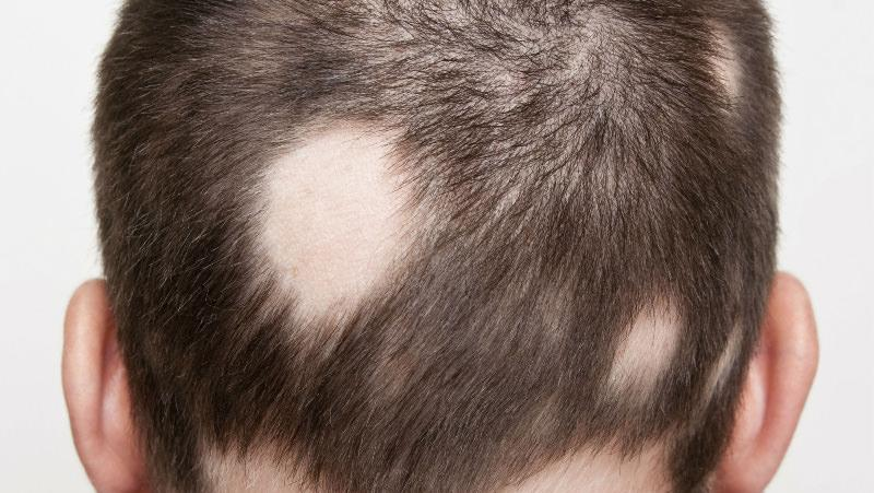 the hair loss disease alopecia areata essay I was diagnosed with alopecia areata alopecia is a hair loss i've met so many great people because of this disease i now have alopecia what a beautiful essay.