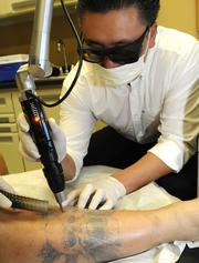 About 20 percent of Dr. W.Y. Chung's business at the Vein and Skin Center of Hawaii is tattoo removal. He started a focus on that in April, and expects that line of business to grow.