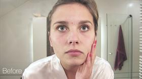 <strong>The before image</strong>: A young woman with blemishes on her face.