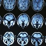UC scientists receive grants to study often-misdiagnosed brain injuries