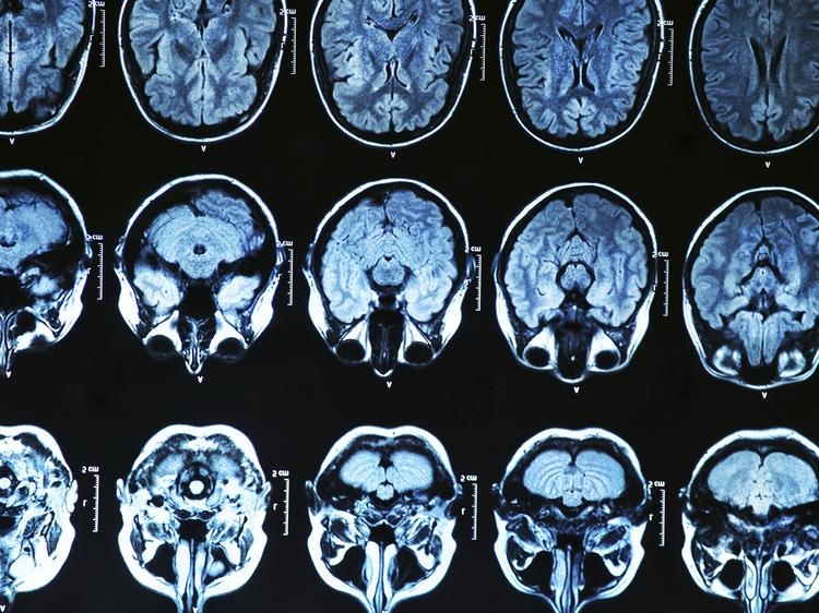 It looks like high good cholesterol and low bad cholesterol are good for the brain, and could lower incidence of Alzheimer's disease and other dementia, according to a new UC Davis study.