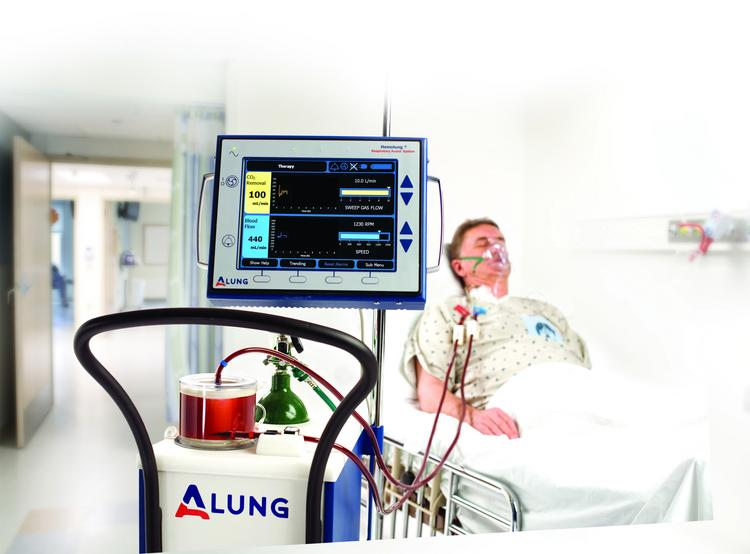 ALung Technologies is working to commercialize its Hemolung Respiratory  Assist System.