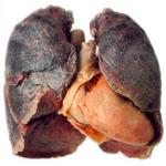 Overlake offers a low-cost way to check lungs for cancer early
