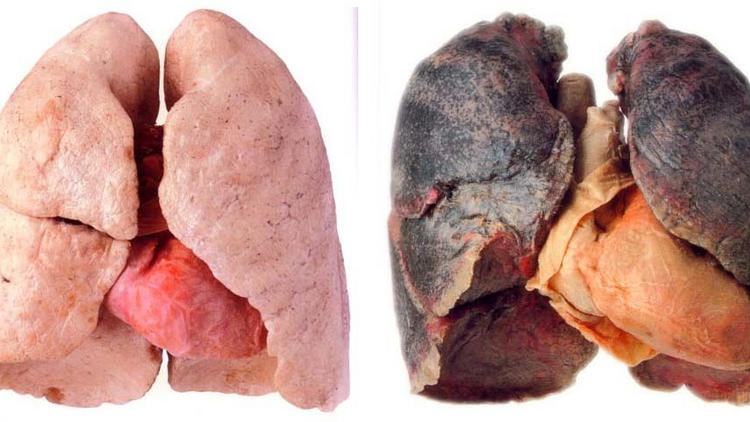 A healthy lung is pink, while a lung consumed by cancer is dark in color.
