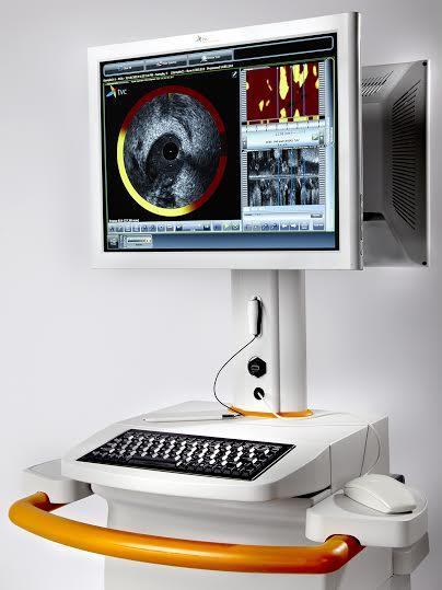 Infraredx's TVC Imaging System Console.