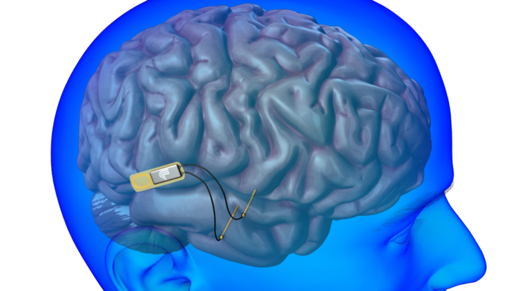 This is how an implantable device being worked on by Lawrence Livermore National Laboratory could fit in the brain to help restore memories.