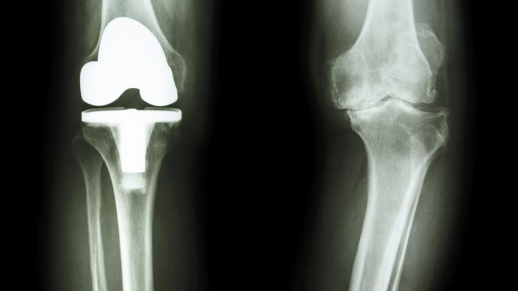 Orthopedic surgeons from the UC Davis Medical Center in Sacramento are performing some outpatient surgeries and procedures in Davis as part of a new affiliation with the Davis Surgery Center.