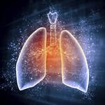 FDA move opens funding, market assistance for Lung Therapeutics