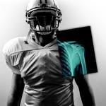 UBMD Ortho partners on 3D imaging research for sports injuries