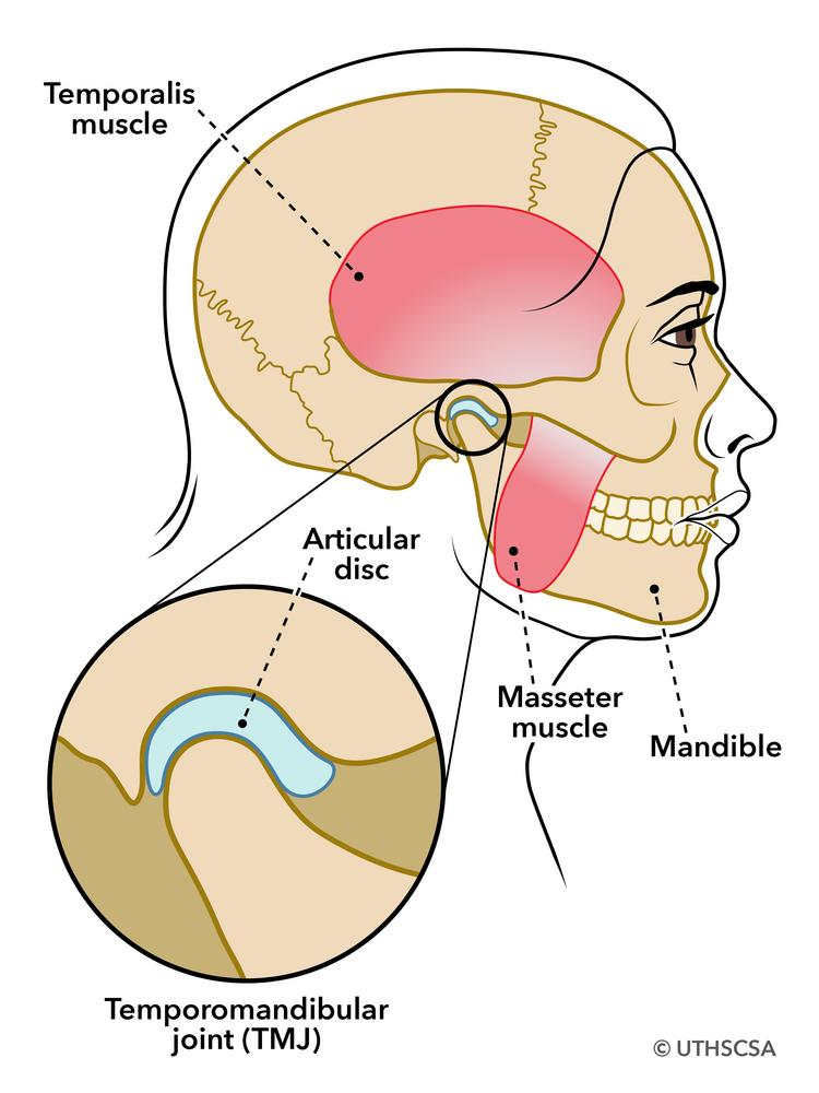 5 symptoms of painful TMJ diso...