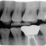 Massachusetts dentist to pay back $300k to state over X-rays