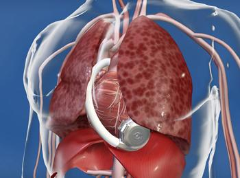 HeartWare International is  warning doctors to inspect the company's HVAD Pump, a ventricular assist  system that consists of a small implantable centrifugal blood pump,  because of a potential defect.