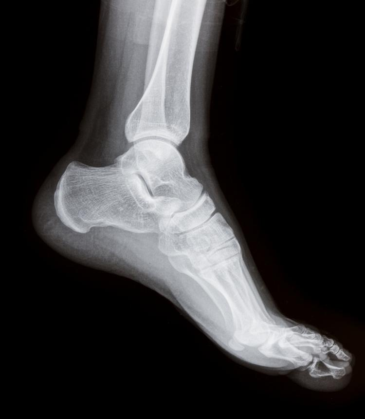 A new study says consumers may have a leg up on doctors when estimating the cost of artificial joints.
