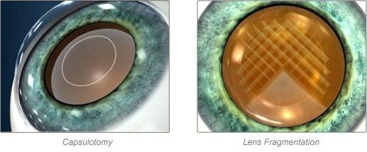 Abbott Lab's planned acquisition of OptiMedica Corp. will give it entry to the rapidly developing laser cataract surgery market.