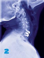 Medtronic spinal device