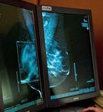 ProHealth cancer plan draws strong reactions