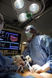 Cardiac surgeon Dr. V. Seenu Reddy performs his portion of the surgery with the support of registered nurse Gracie Keller andCertified First Assistant Dan Lenigan.