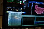 Medical staff at Centennial Heart & Vascular Center performs a cardiac ablation to a patient with an irregular heartbeat.