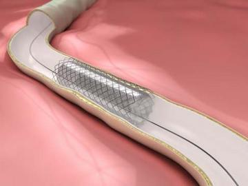 Boston Scientific competitor calls the cops to seize 'illegal' stents