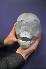 Studio Fathom of Oakland used 3D printers to make a resin replica of a young boy's skull for doctors in Texas so they could practice a brain surgery procedure before entering the operating room.