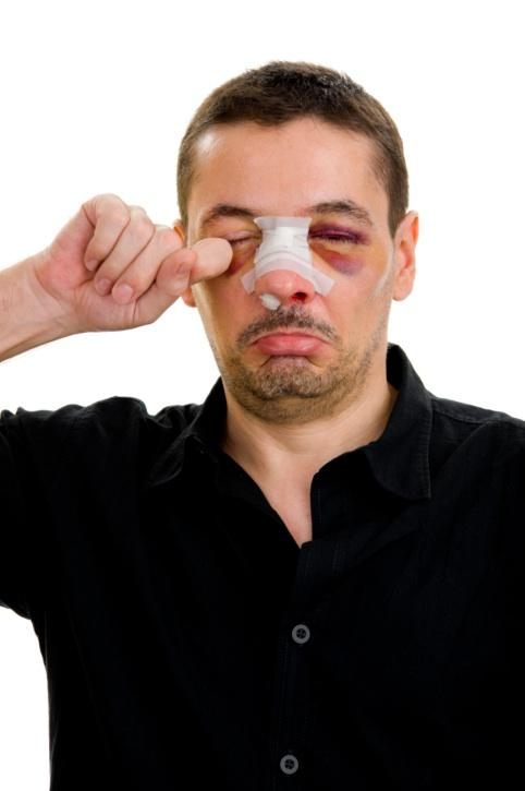 "One employee used ""fell out of bed and broke nose"" as an excuse not to come to work, according to CareerBuilder.com."