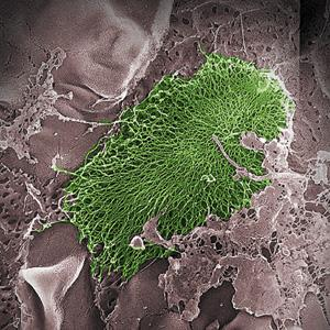 E. coli bacteria, shown in green, are the most common causes of urinary tract infections.