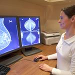 More elect double mastectomy as treatment option