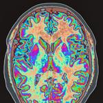 <strong>BU</strong> study marks key step toward diagnosing CTE in living football players