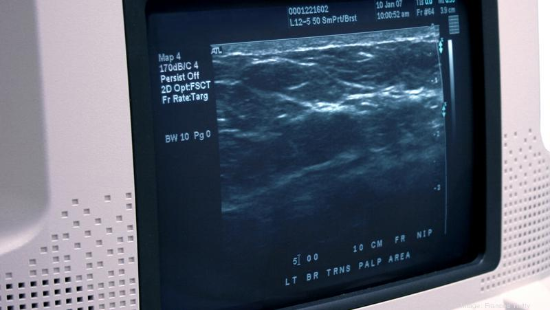 How AI is making breast cancer diagnosis more accurate