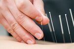 Acupuncturists poke Regence over new policy