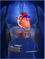 New company to manufacture heart pumps in Houston