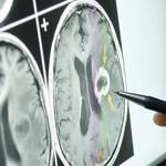 Exclusive: Neurology practice to expand in Beavercreek