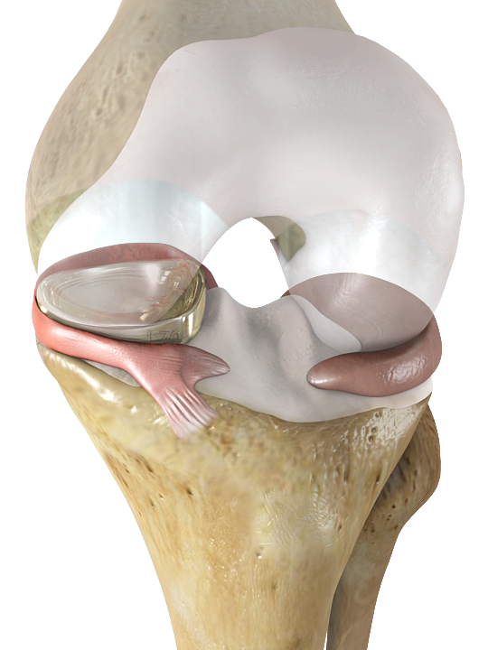 Memphis-based Active Implants' NUsurface Meniscus Implant