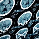 Wake Forest Baptist researchers to lead $14M statewide stroke care study